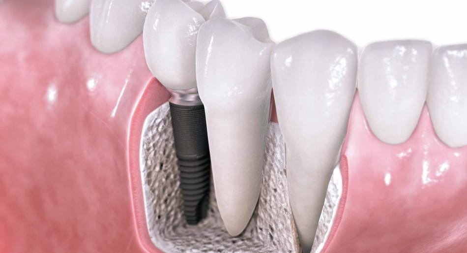 Χειρουργική στόματος – Εμφυτευματολογία