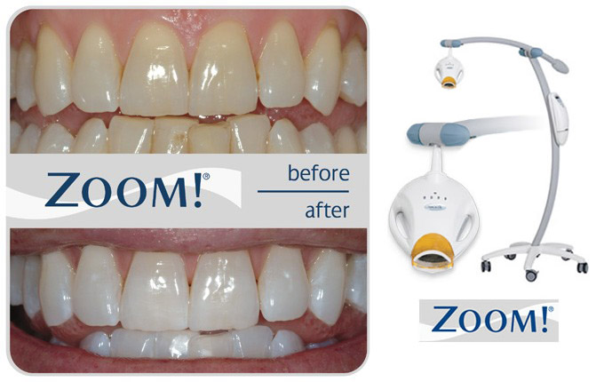 teethWhiteningZoom